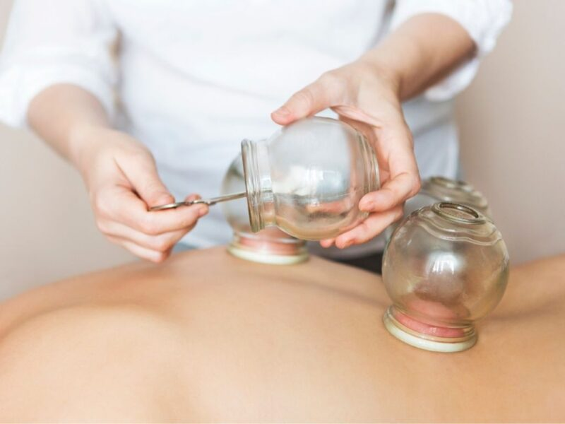 Cupping therapy near me